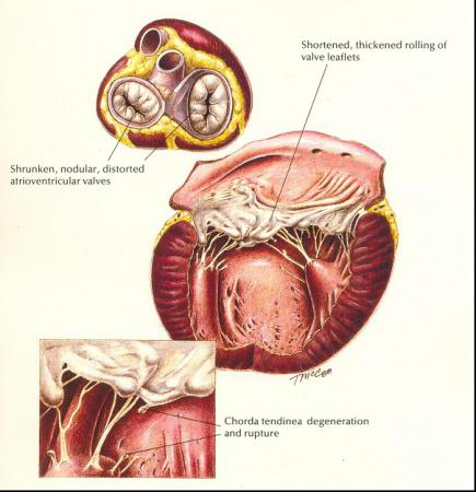 Endocardiose